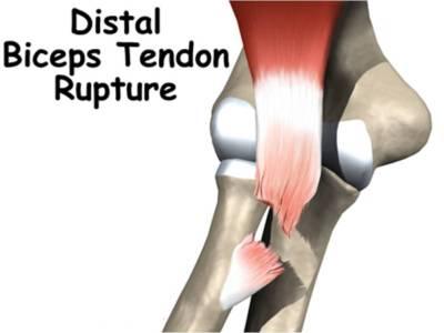 Distal_Biceps_Tendon_Rupture